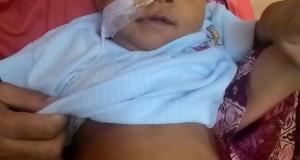 Solidaritas Untuk Hurin, Bayi Penderita Atresia Bilier Terkumpul 55 Juta
