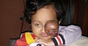 Ayo Bantu Pengobatan Kanker Mata Nadira Gadis Cilik di Bener Meriah