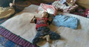 Gunadi, Anak Disabilitas di Pondok Gajah Akhirnya Miliki Akte Kelahiran